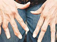 类风湿性关节炎的早期症状有哪些