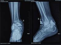 骨髓炎双向清透治愈疗法