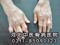 风湿性关节炎的具体症状有哪些
