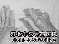 引发类风湿关节炎的4大因素