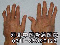 类风湿关节炎的临床症状有哪些