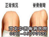 脊柱侧弯的症状有哪些
