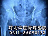 儿童得股骨头坏死会有什么症状