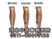 骨外伤的预防措施有哪些