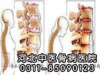 强直性脊柱炎的危害