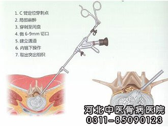 微创&椎间孔镜手术告患者书(一)