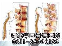 强直性脊柱炎需要如何进行治疗呢