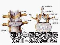 腰椎间盘突出认识的六大误区
