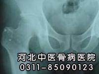 左股骨头缺血性坏死Ⅲ期患者康复出院