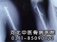 骨折并发骨不连的预防