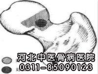 股骨头坏死患者不能吃什么东西